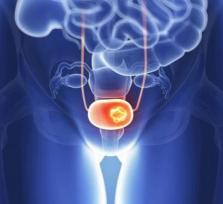 Urīnpūšļa vēzis – biežāk sastopams vīriešiem
