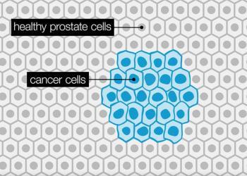 Diagnosticēto prostatas vēža gadījumu incidences dinamika un to ietekmējošie faktori