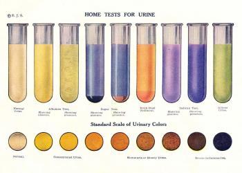Par ko stāsta urīna krāsa